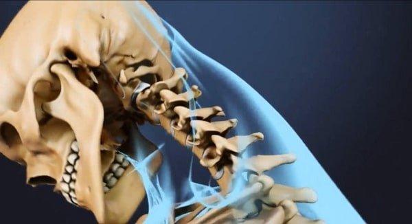 Tipos de latigazos cervicales